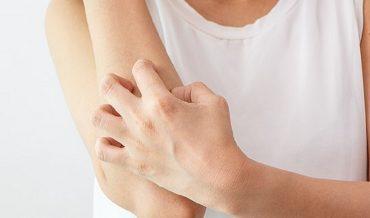 Tại sao các vết thương thường ngứa khi chúng đang lành lại?